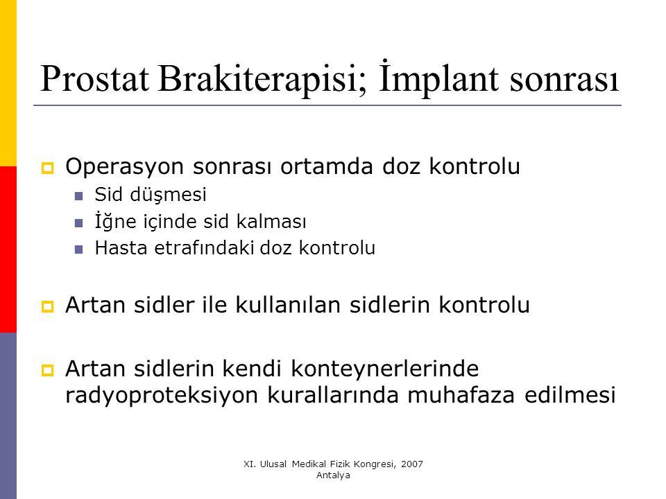 Prostat Brakiterapisi; İmplant sonrası