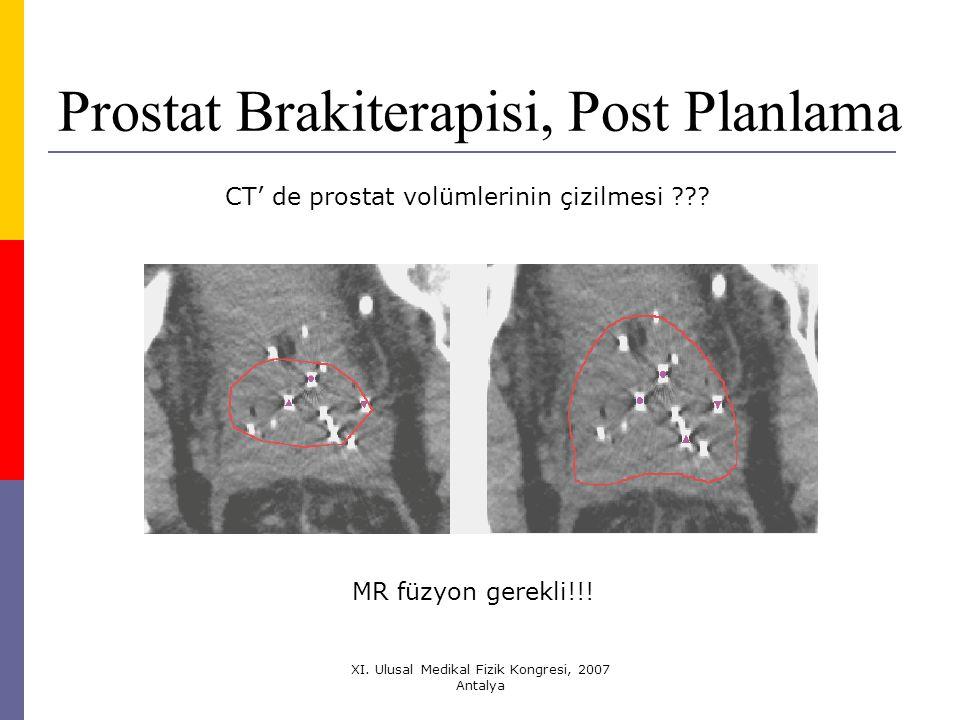 Prostat Brakiterapisi, Post Planlama