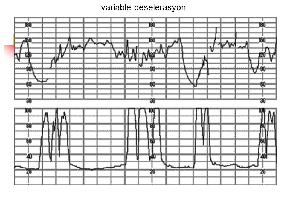 variable deselerasyon