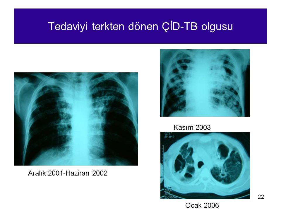 Tedaviyi terkten dönen ÇİD-TB olgusu