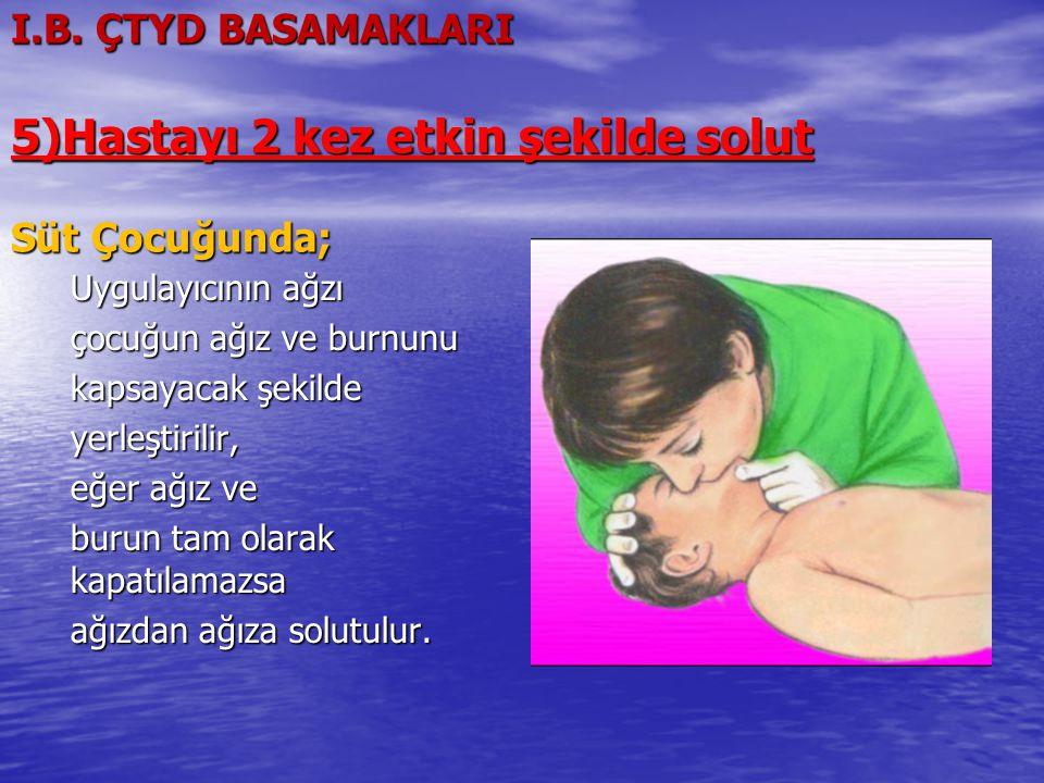 I.B. ÇTYD BASAMAKLARI 5)Hastayı 2 kez etkin şekilde solut Süt Çocuğunda;
