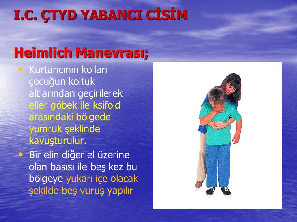 I.C. ÇTYD YABANCI CİSİM Heimlich Manevrası;