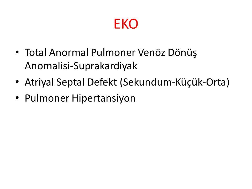 EKO Total Anormal Pulmoner Venöz Dönüş Anomalisi-Suprakardiyak