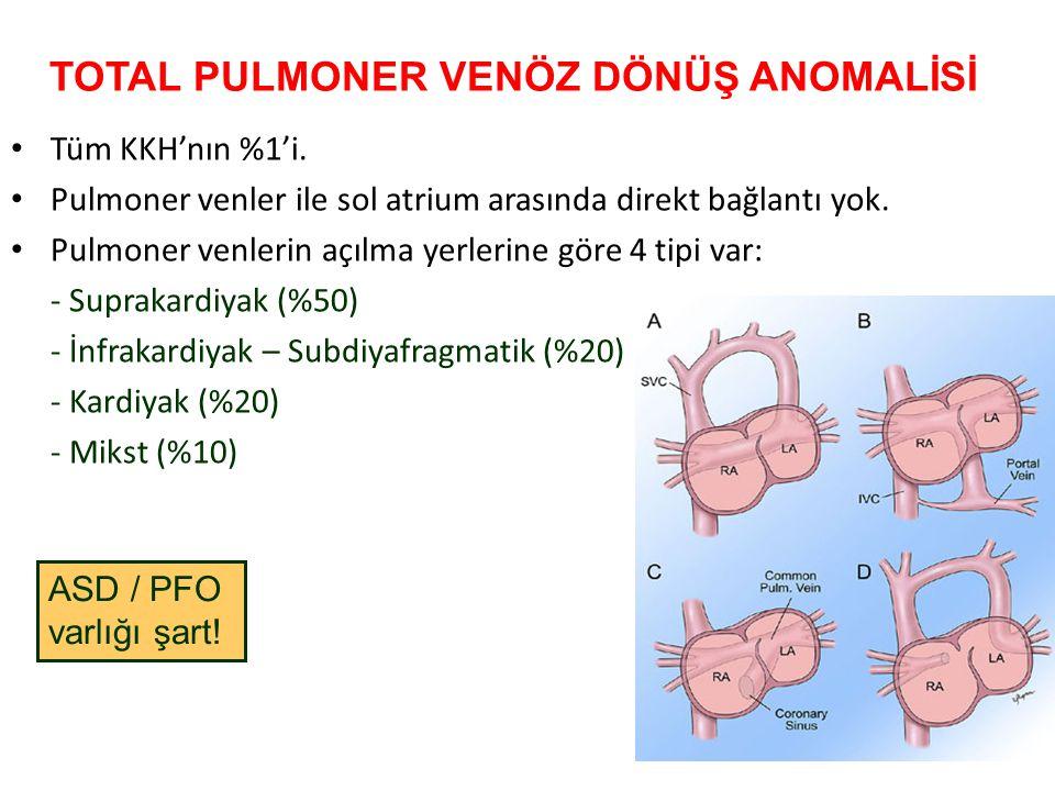 TOTAL PULMONER VENÖZ DÖNÜŞ ANOMALİSİ
