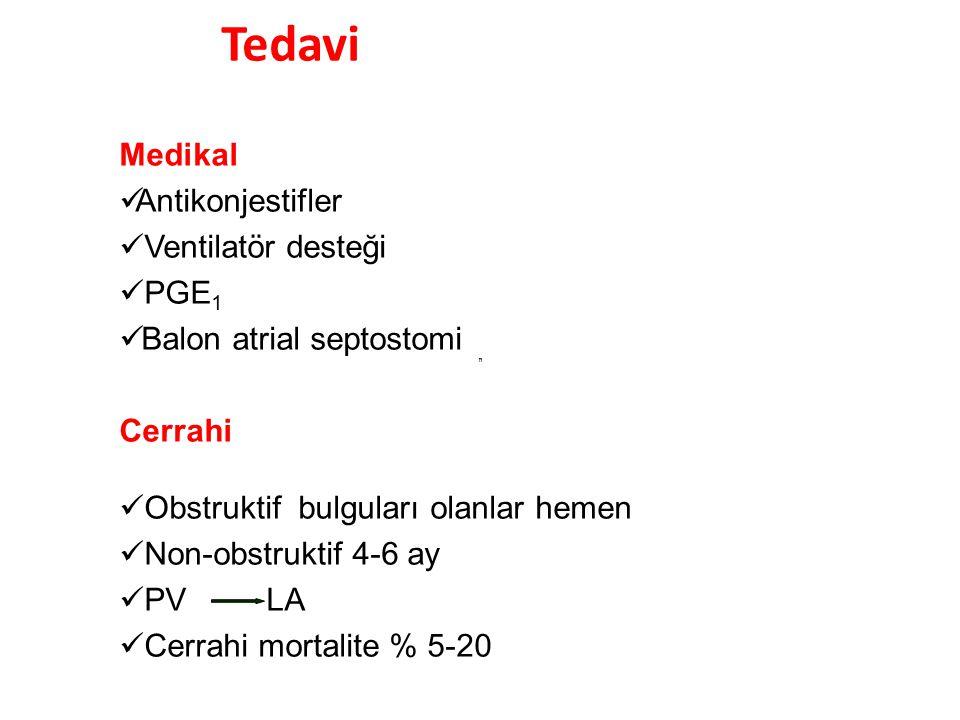 Tedavi Medikal Antikonjestifler Ventilatör desteği PGE1