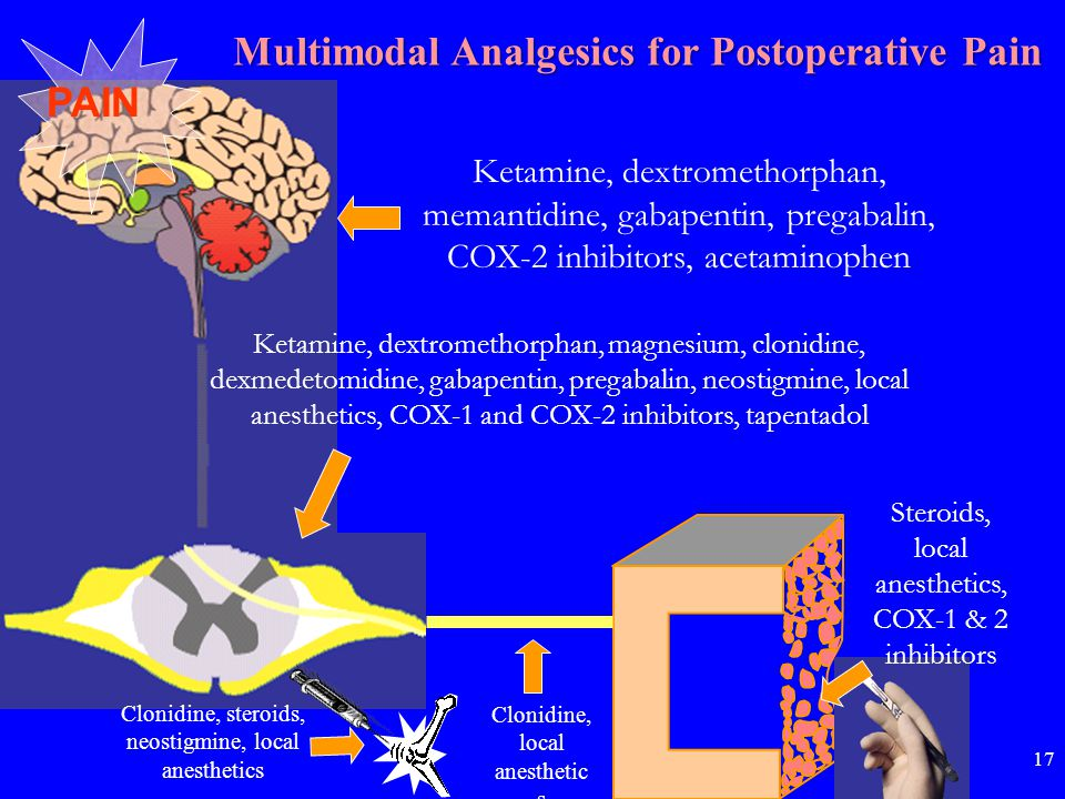 Multimodal Analgesics for Postoperative Pain PAIN