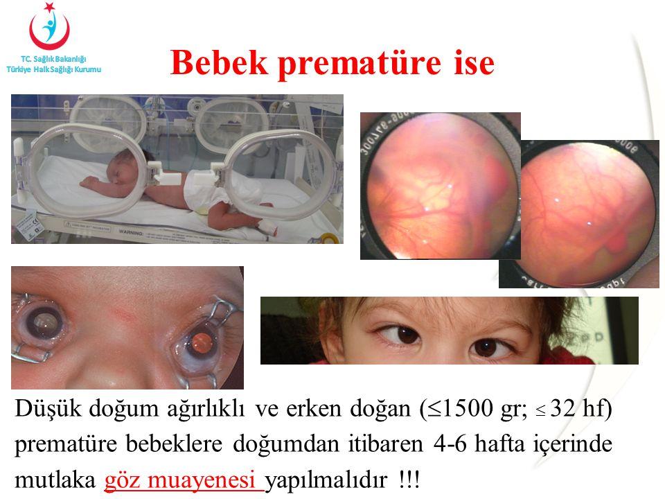 Bebek prematüre ise
