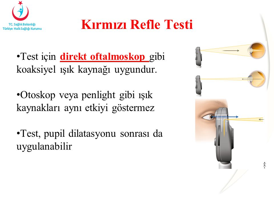 Kırmızı Refle Testi Test için direkt oftalmoskop gibi koaksiyel ışık kaynağı uygundur.