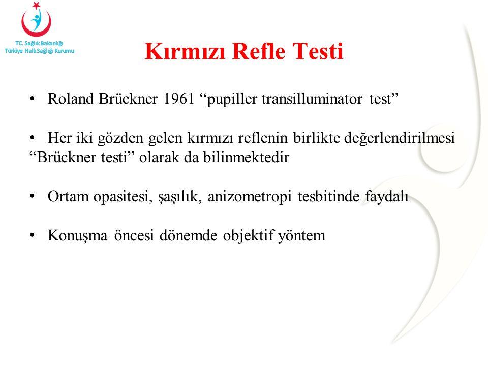 Kırmızı Refle Testi Roland Brückner 1961 pupiller transilluminator test