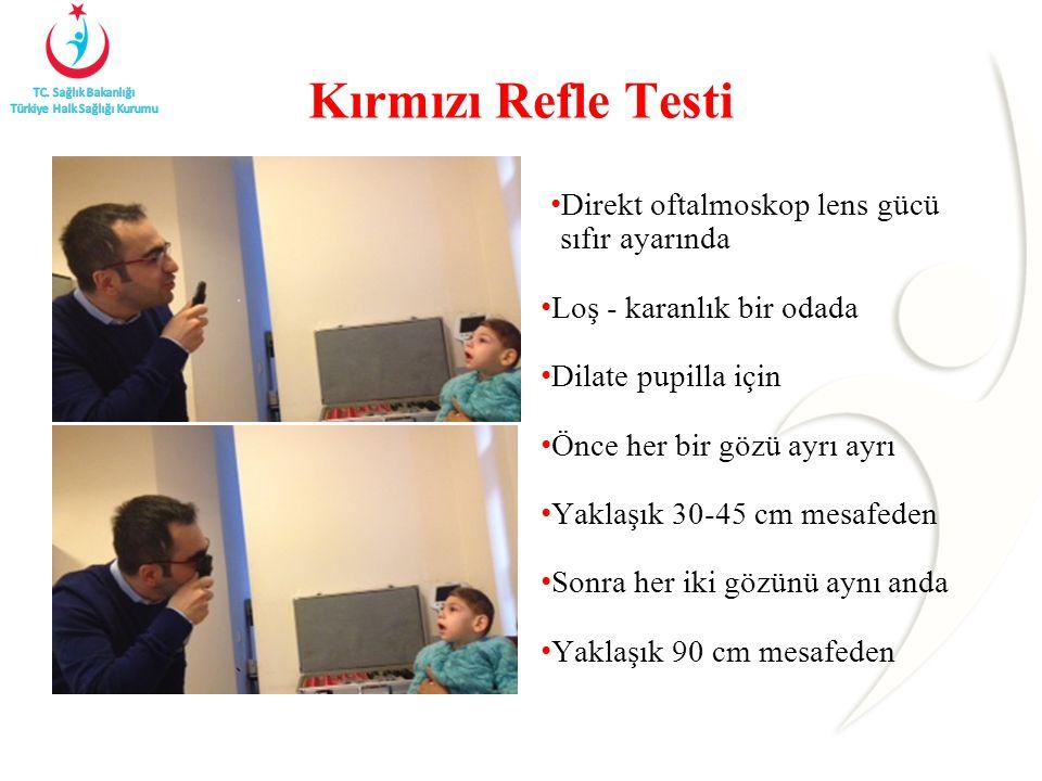Kırmızı Refle Testi Direkt oftalmoskop lens gücü sıfır ayarında