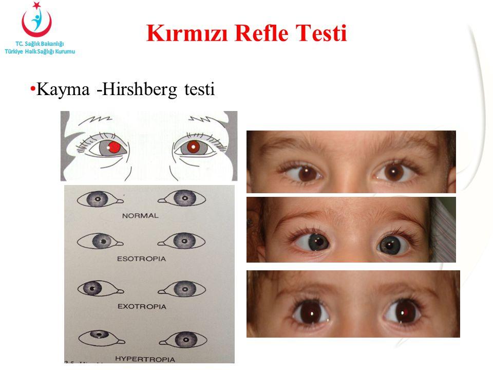 Kırmızı Refle Testi Kayma -Hirshberg testi