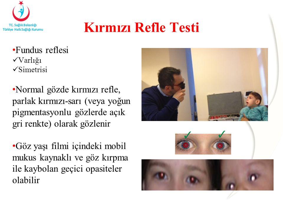 Kırmızı Refle Testi Fundus reflesi
