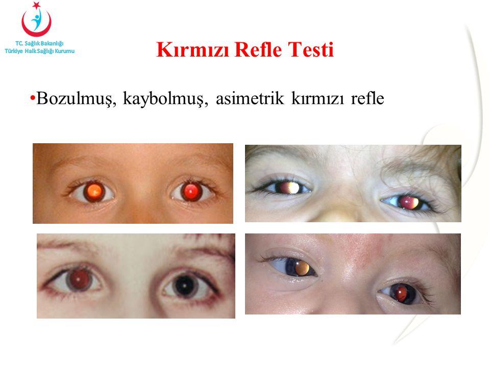 Kırmızı Refle Testi Bozulmuş, kaybolmuş, asimetrik kırmızı refle