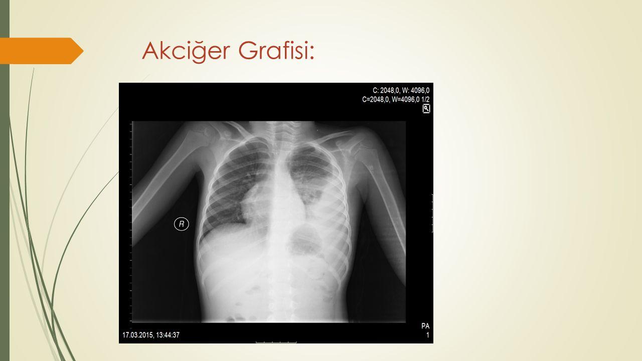 Akciğer Grafisi: