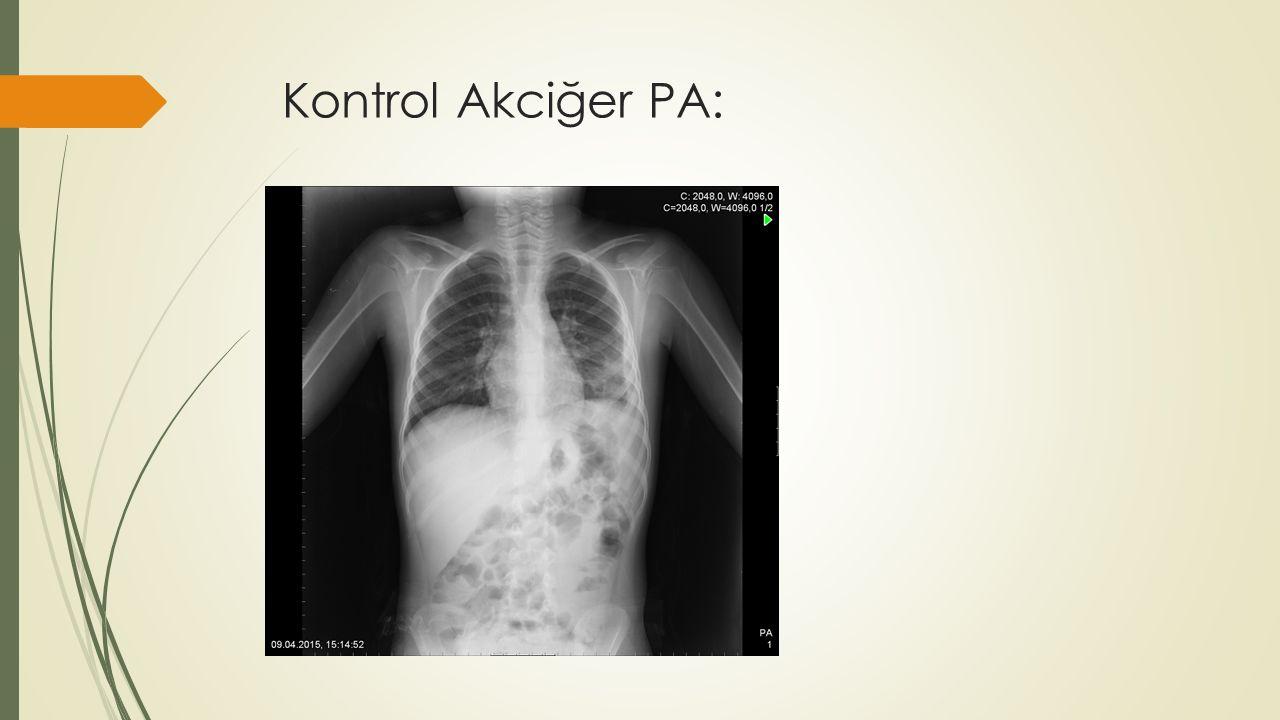 Kontrol Akciğer PA: