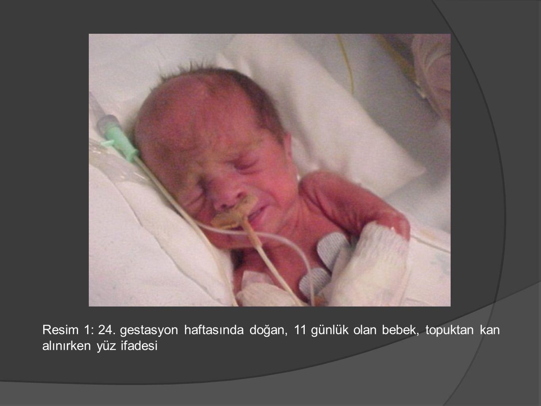 Resim 1: 24. gestasyon haftasında doğan, 11 günlük olan bebek, topuktan kan alınırken yüz ifadesi