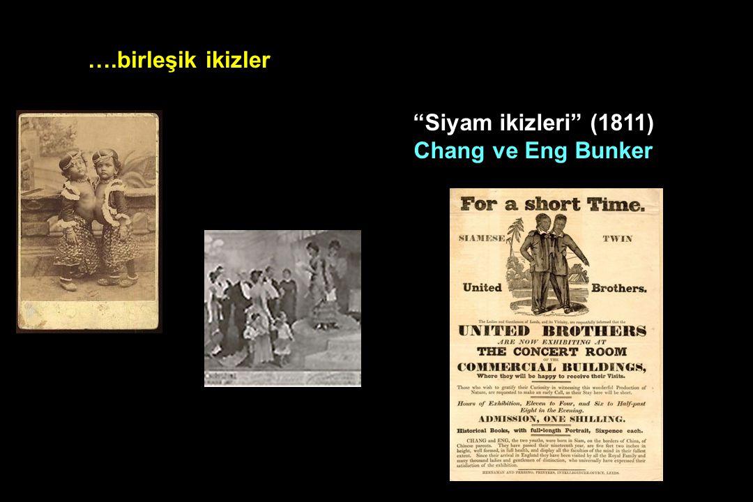 ….birleşik ikizler Siyam ikizleri (1811) Chang ve Eng Bunker