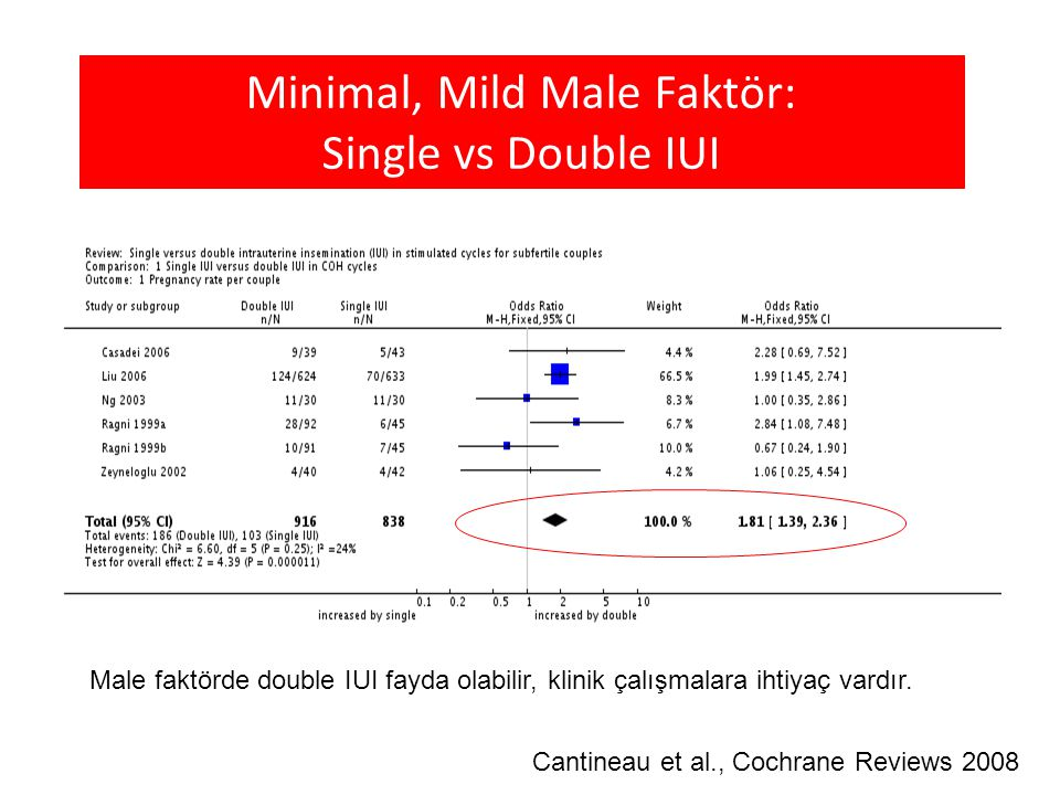 Minimal, Mild Male Faktör: Single vs Double IUI