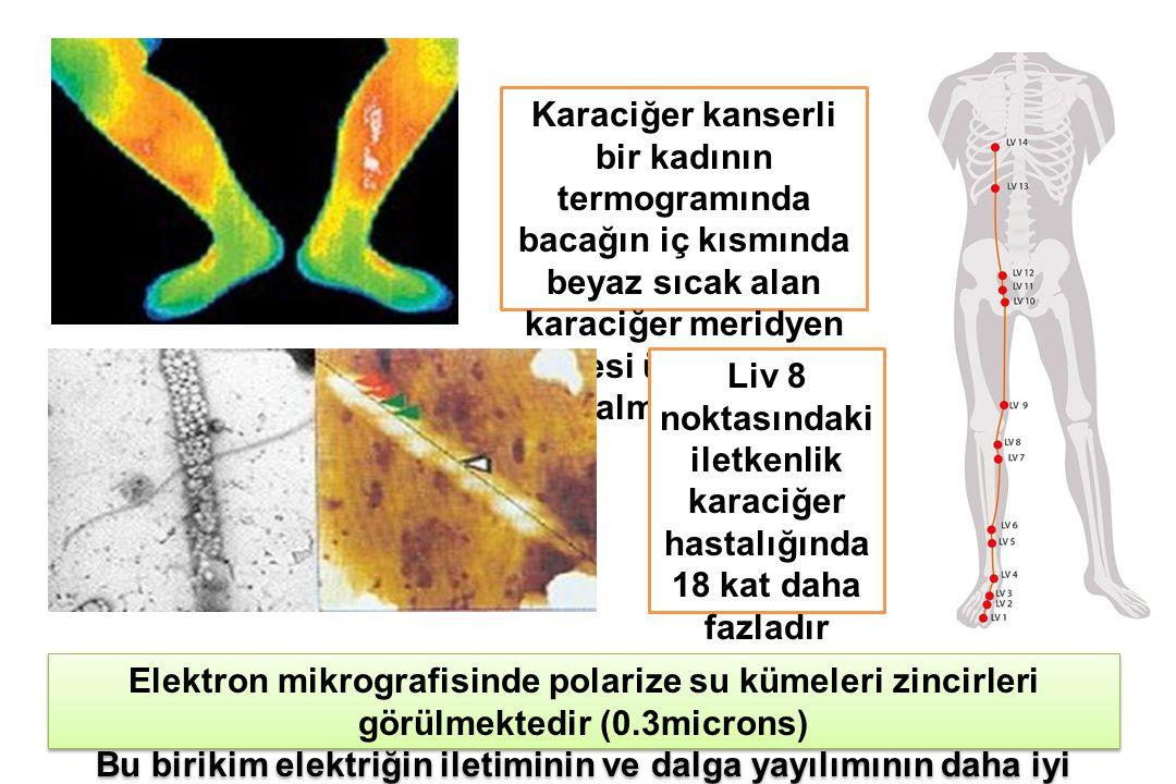 Liv 8 noktasındaki iletkenlik karaciğer hastalığında