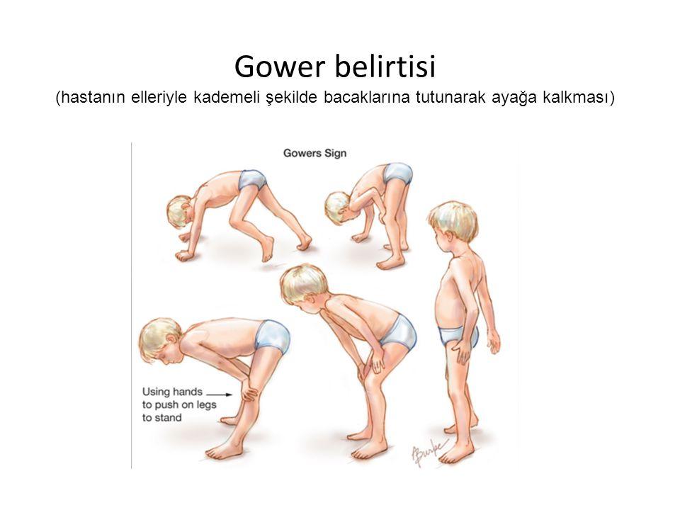 Gower belirtisi (hastanın elleriyle kademeli şekilde bacaklarına tutunarak ayağa kalkması)