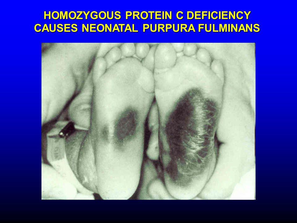 HOMOZYGOUS PROTEIN C DEFICIENCY CAUSES NEONATAL PURPURA FULMINANS