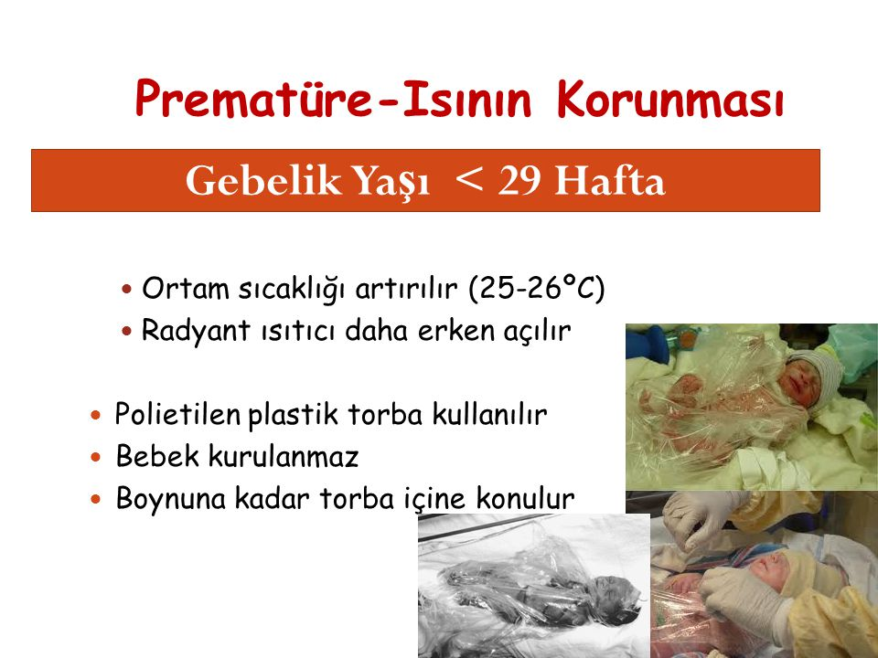 Prematüre-Isının Korunması