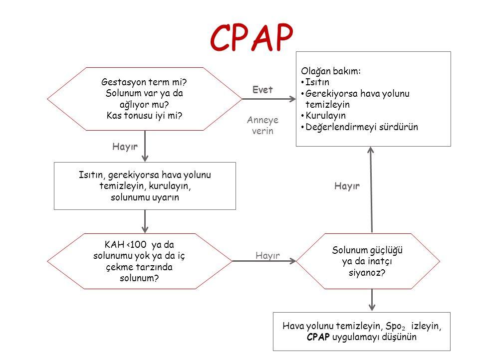CPAP Isıtılır Solunum yolu temizlenir Kurulanır