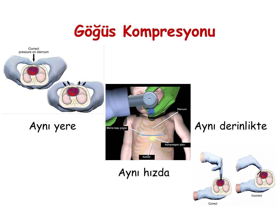 Göğüs Kompresyonu Aynı yere Aynı derinlikte Aynı hızda