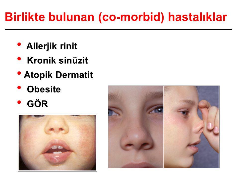 Birlikte bulunan (co-morbid) hastalıklar