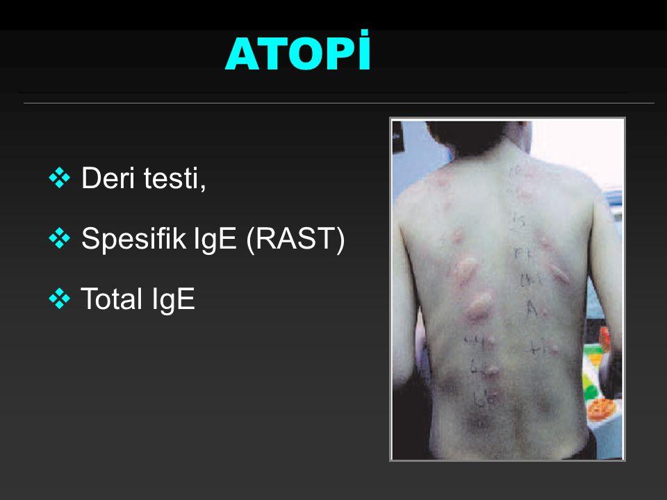 ATOPİ Deri testi, Spesifik IgE (RAST) Total IgE