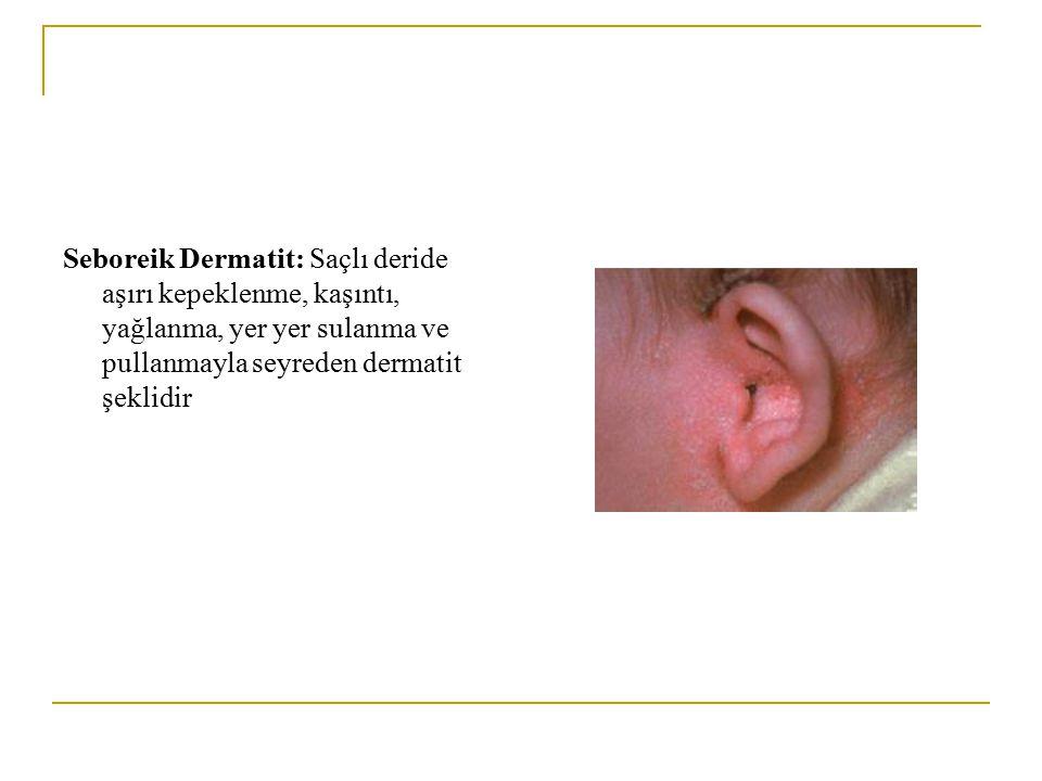 Seboreik Dermatit: Saçlı deride aşırı kepeklenme, kaşıntı, yağlanma, yer yer sulanma ve pullanmayla seyreden dermatit şeklidir