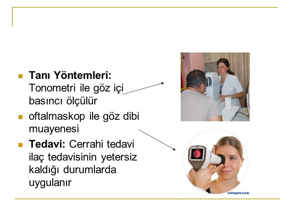 Tanı Yöntemleri: Tonometri ile göz içi basıncı ölçülür