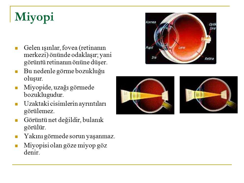 Miyopi Gelen ışınlar, fovea (retinanın merkezi) önünde odaklaşır; yani görüntü retinanın önüne düşer.