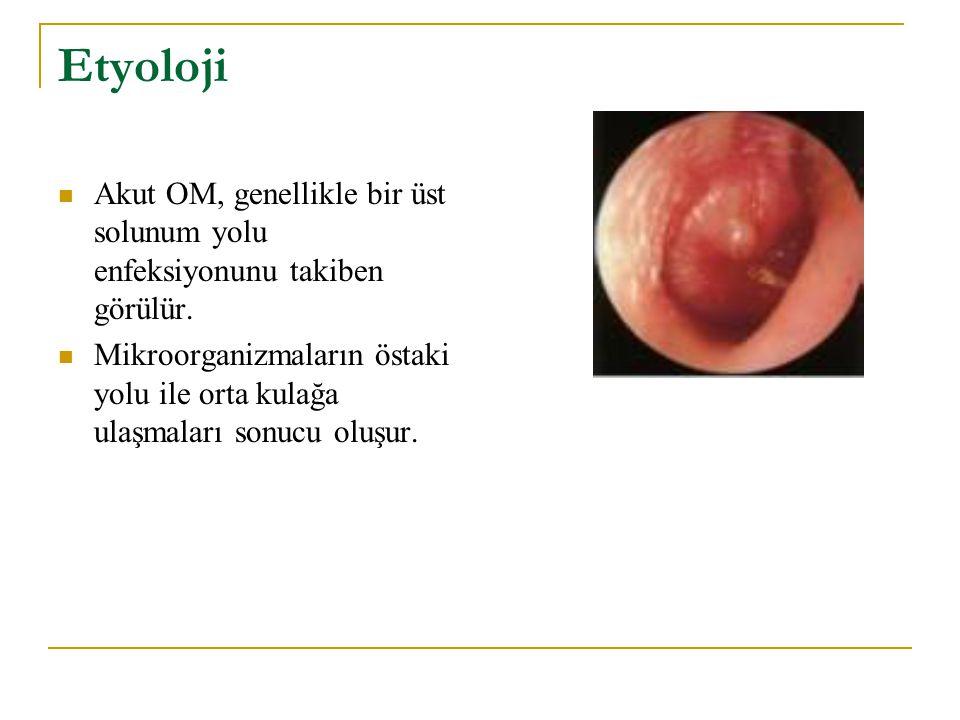 Etyoloji Akut OM, genellikle bir üst solunum yolu enfeksiyonunu takiben görülür.