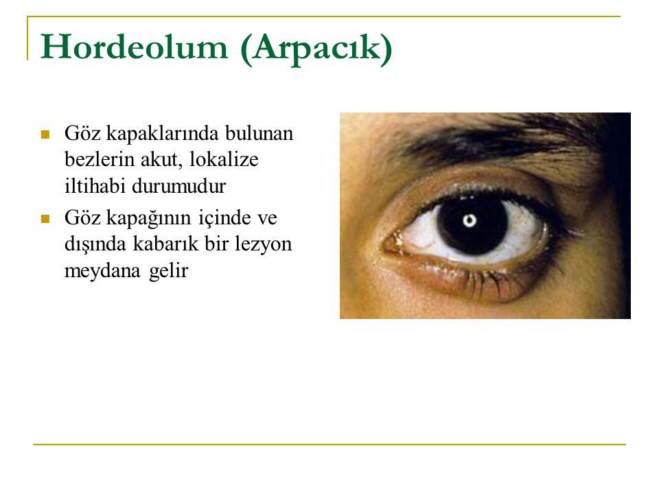 Hordeolum (Arpacık) Göz kapaklarında bulunan bezlerin akut, lokalize iltihabi durumudur.
