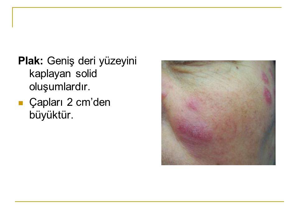 Plak: Geniş deri yüzeyini kaplayan solid oluşumlardır.