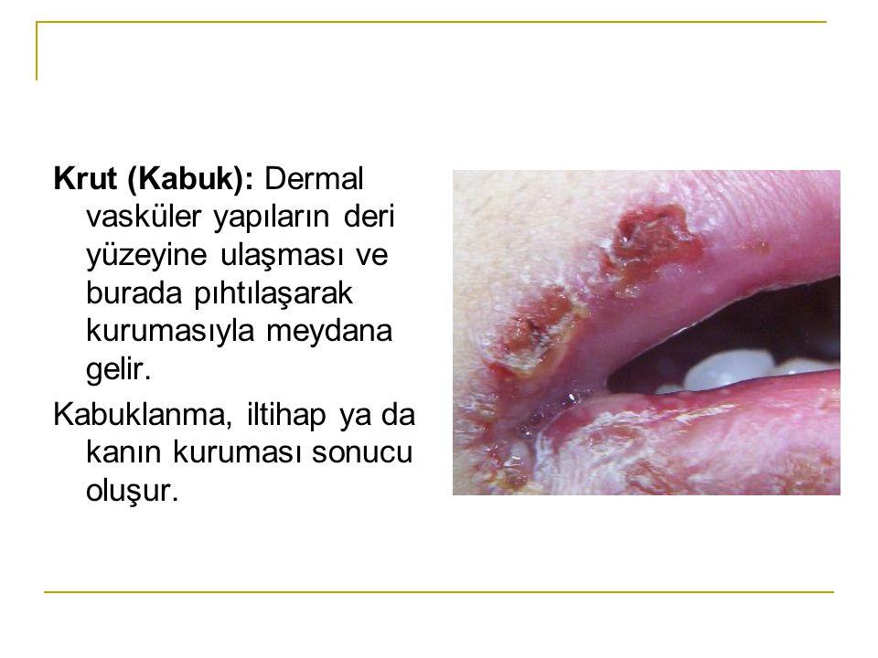 Krut (Kabuk): Dermal vasküler yapıların deri yüzeyine ulaşması ve burada pıhtılaşarak kurumasıyla meydana gelir.