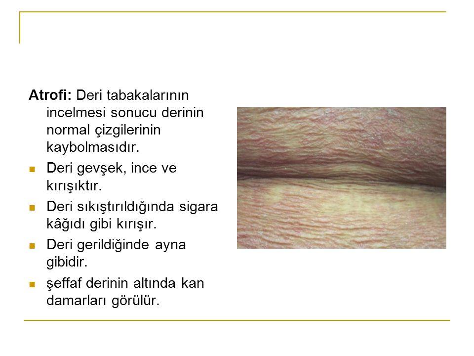 Atrofi: Deri tabakalarının incelmesi sonucu derinin normal çizgilerinin kaybolmasıdır.