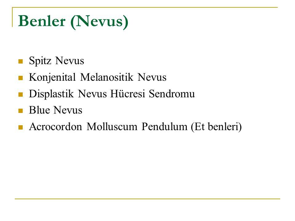 Benler (Nevus) Spitz Nevus Konjenital Melanositik Nevus
