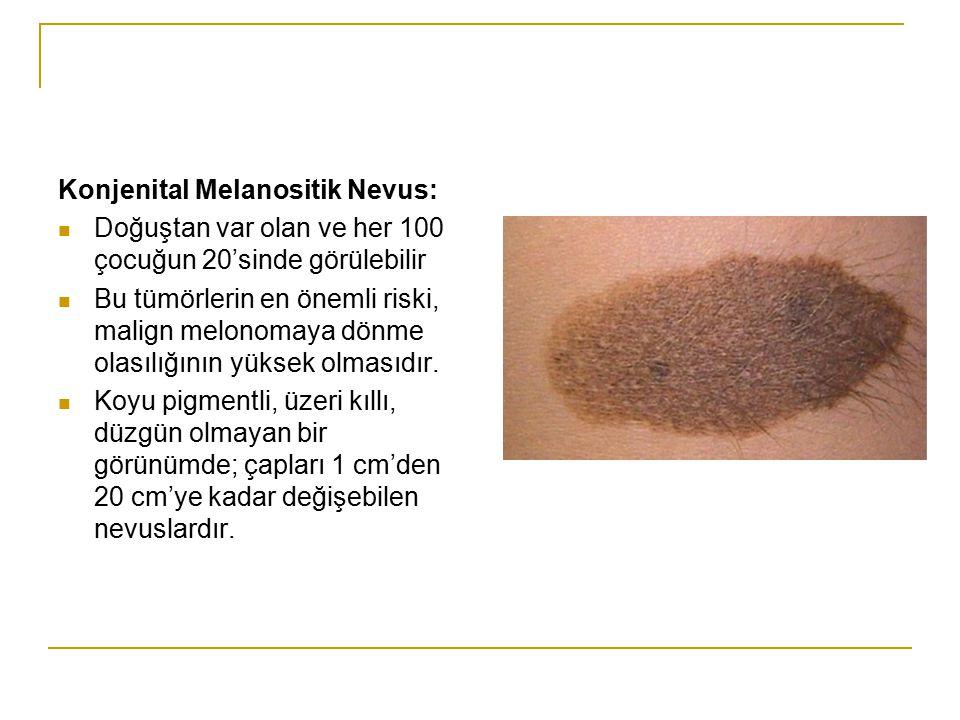 Konjenital Melanositik Nevus: