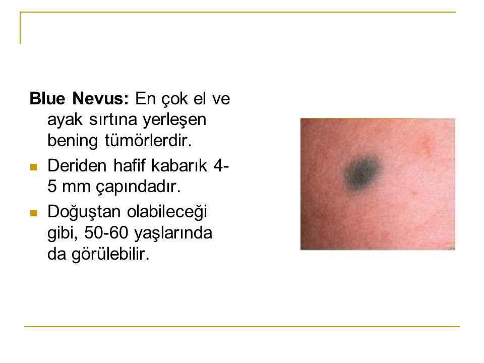 Blue Nevus: En çok el ve ayak sırtına yerleşen bening tümörlerdir.