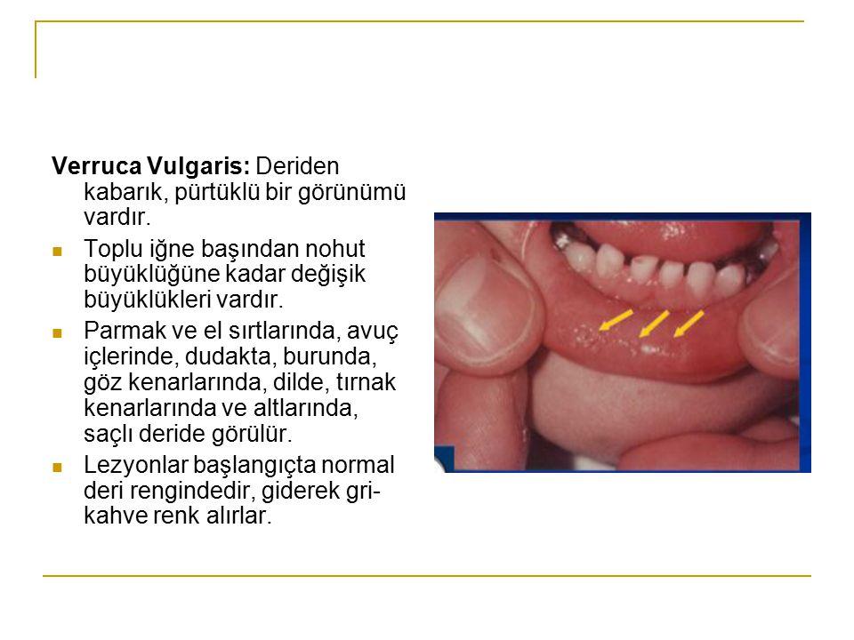 Verruca Vulgaris: Deriden kabarık, pürtüklü bir görünümü vardır.