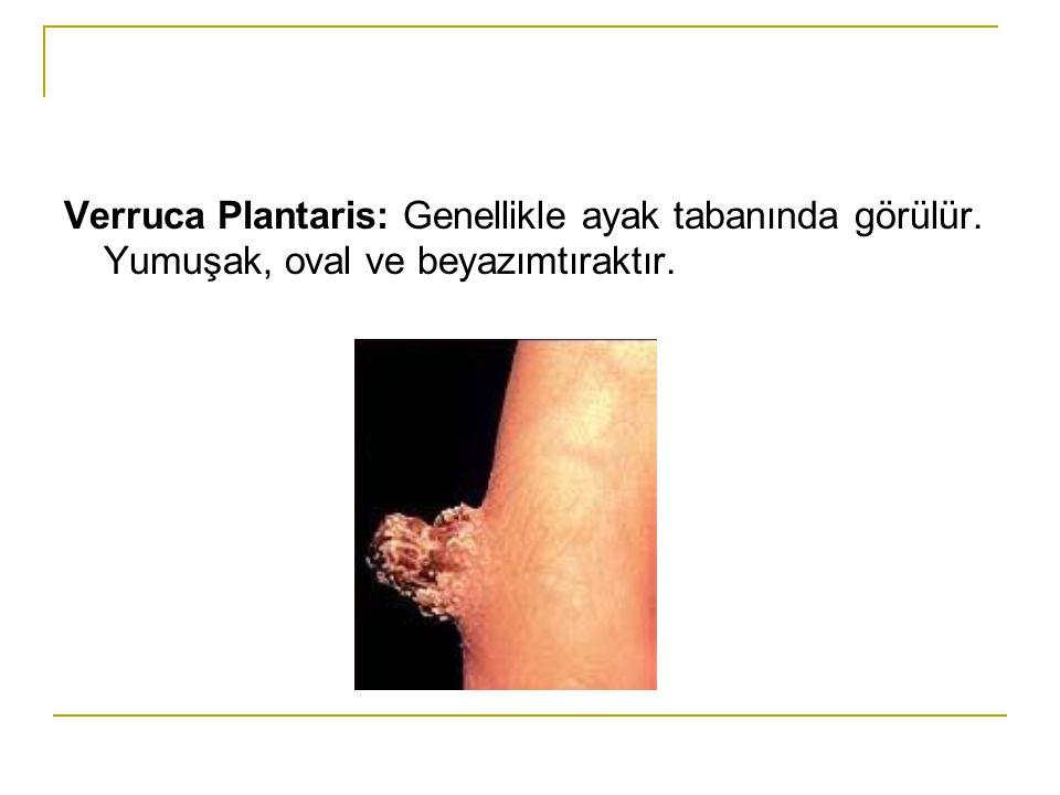 Verruca Plantaris: Genellikle ayak tabanında görülür