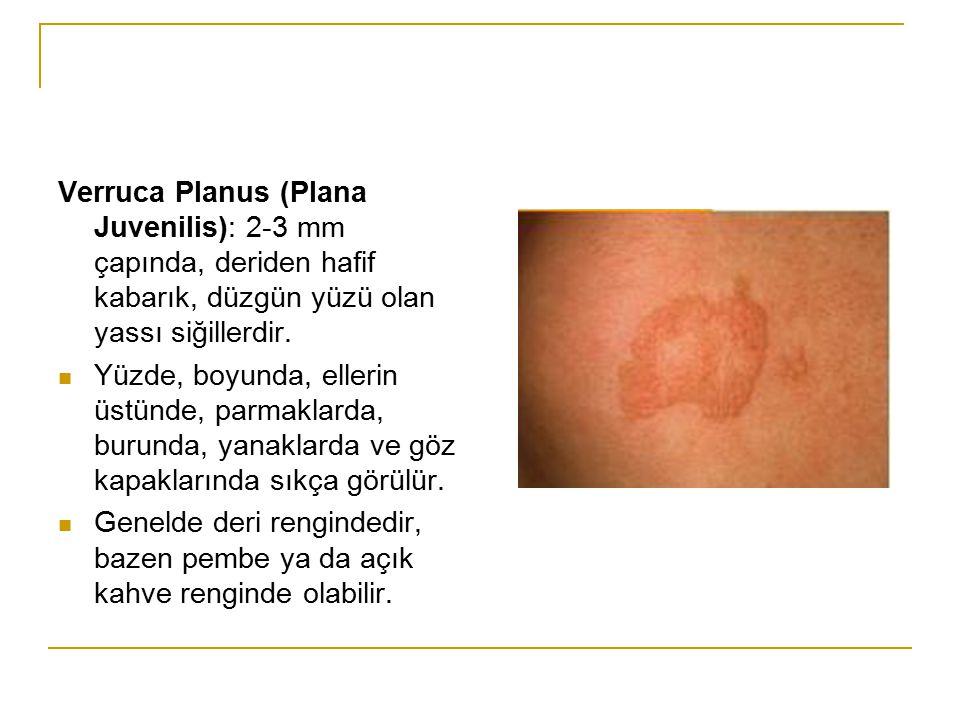 Verruca Planus (Plana Juvenilis): 2-3 mm çapında, deriden hafif kabarık, düzgün yüzü olan yassı siğillerdir.