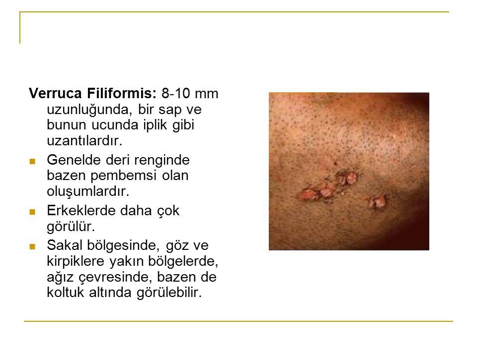 Verruca Filiformis: 8-10 mm uzunluğunda, bir sap ve bunun ucunda iplik gibi uzantılardır.