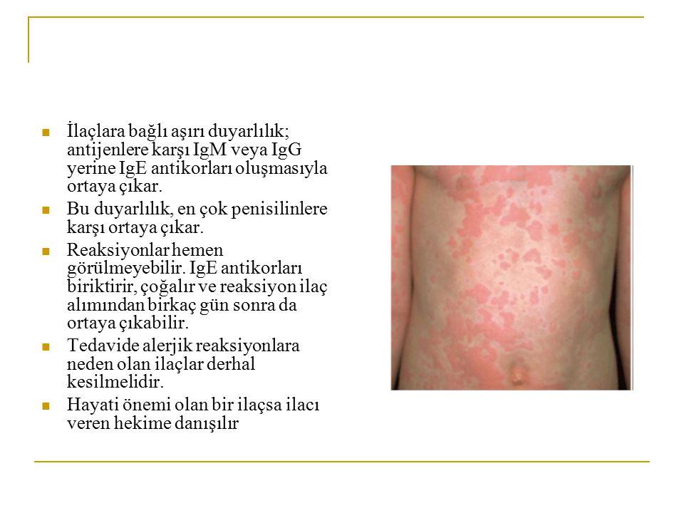 İlaçlara bağlı aşırı duyarlılık; antijenlere karşı IgM veya IgG yerine IgE antikorları oluşmasıyla ortaya çıkar.