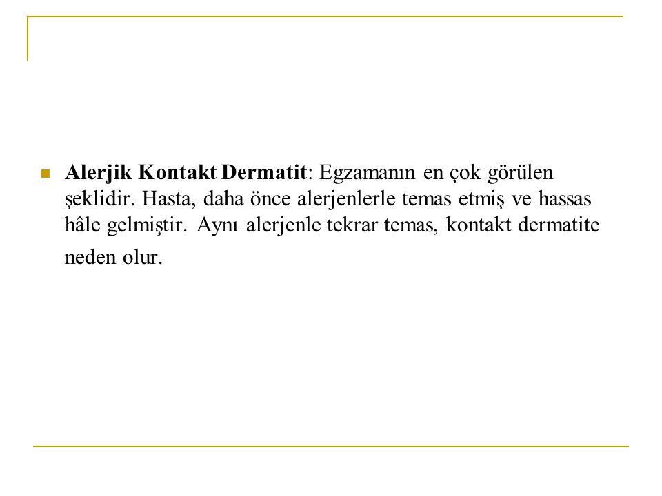 Alerjik Kontakt Dermatit: Egzamanın en çok görülen şeklidir