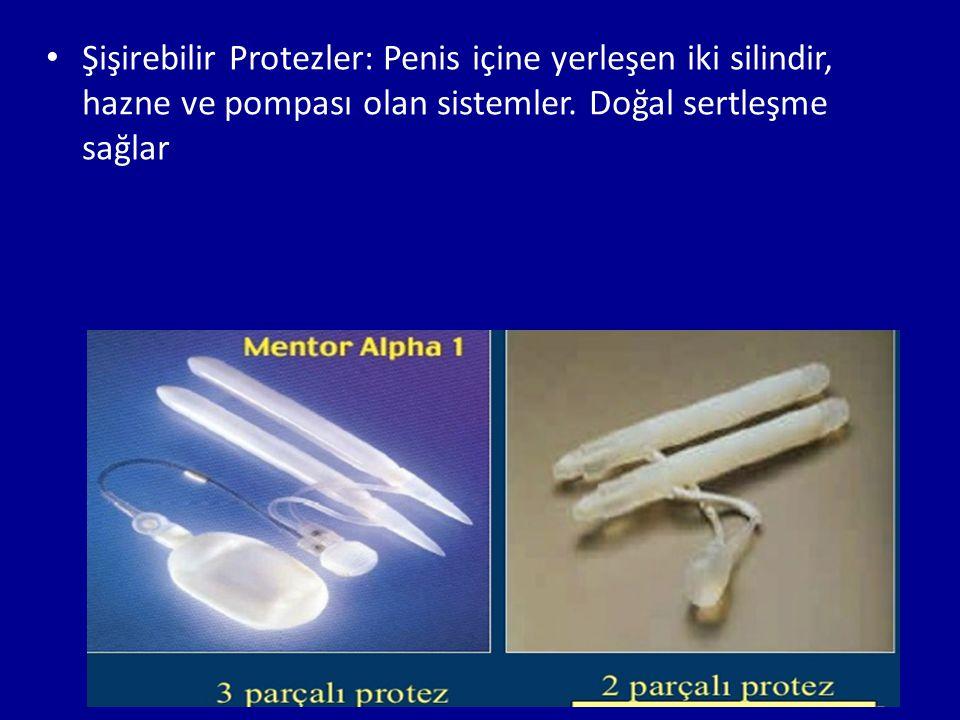 Şişirebilir Protezler: Penis içine yerleşen iki silindir, hazne ve pompası olan sistemler.