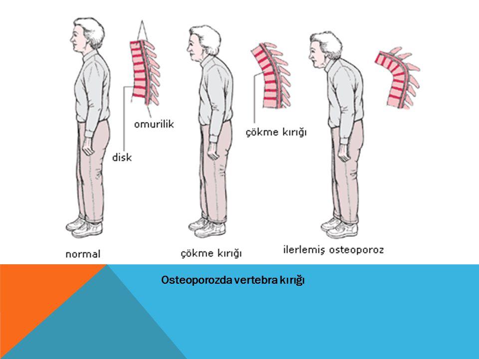 Osteoporozda vertebra kırığı
