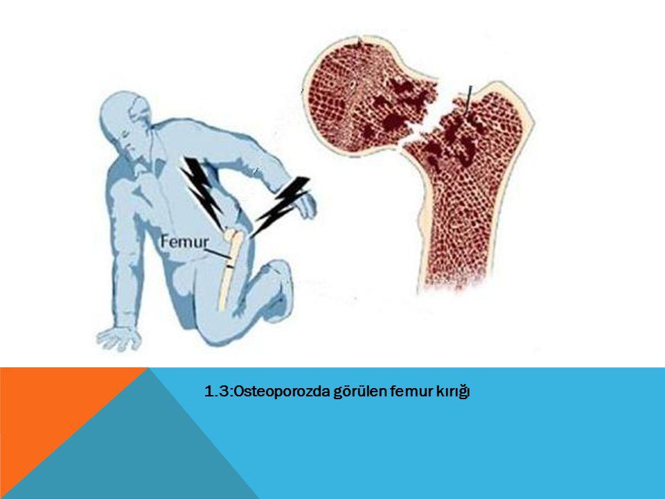 1.3:Osteoporozda görülen femur kırığı